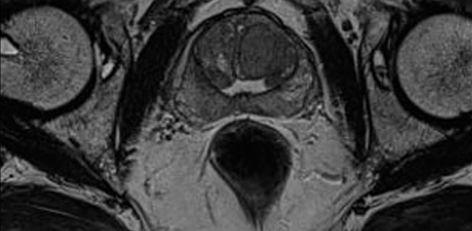rezonans magnetyczny prostaty