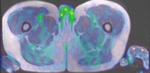 Pozytonowa tomografia emisyjna z oznakowianiem PSMA