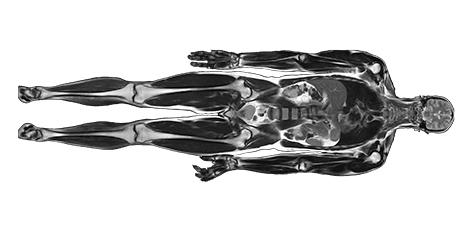 Rezonans magnetyczny całego ciała (whole body MRI)