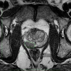 Biopsja celowana pod obrazem MRI