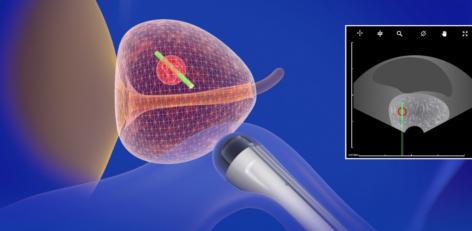 biopsja-fuzyjna-prostaty