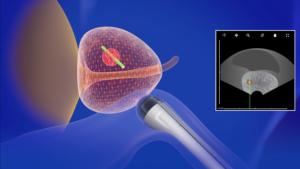 fuzyjna biopsja